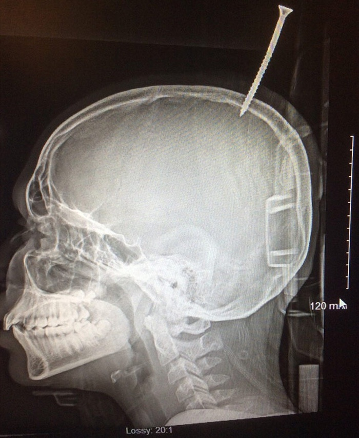 Screw pierced boy's skull in treehouse construction accident