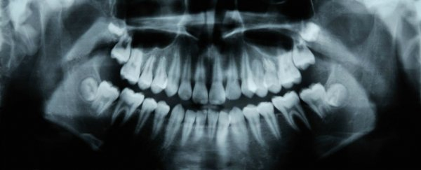 An Alzheimer's drug has been found to help teeth repair themselves in just 6 weeks
